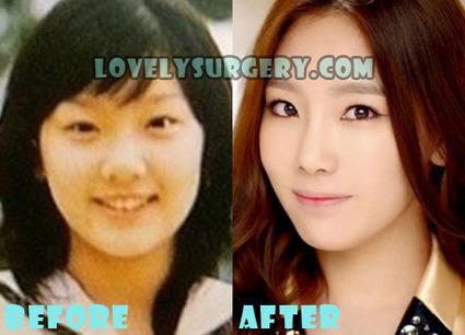 SNSD (Girls' Generation) Kim Taeyeon Plastic Surgery | Celebrity Plastic Surgery | Scoop.it