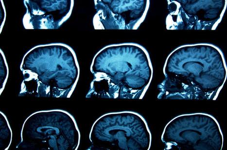 El cerebro olvida a propósito para ahorrar energía | Salud Visual (Profesional) 2.0 | Scoop.it