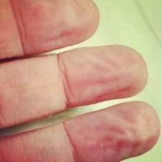 Γιατί το δέρμα των δακτύλων μας ζαρώνει, όταν κάνουμε μπάνιο; Μια πιθανή απάντηση που παραπέμπτει στην εξέλιξη από τοScientific American | hfr | Scoop.it