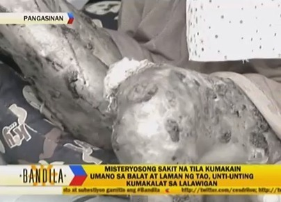 Fulfillment of a Prophecy - A Mysterious Disease Spreading in Pangasianan « SilayTambayan | What's the trend | Scoop.it