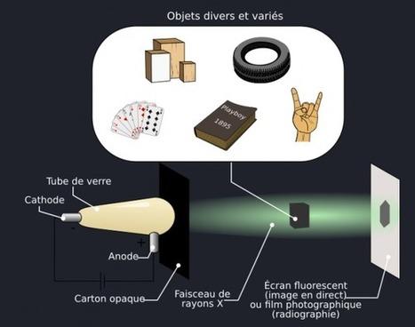 La radiographie : cent ans d'innovations, et ça continue !   C@fé des Sciences   Scoop.it