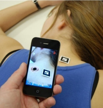 De la réalité augmentée pour la formation médicale | Actu santé et digitale | Scoop.it