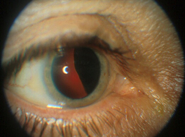 Eye Cancer and the Relevance of Genetic Testing | Melanoma Dispatch | Scoop.it
