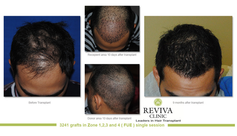 Cost of Hair Transplant India | FUE Hair Transplant in India | Scoop.it