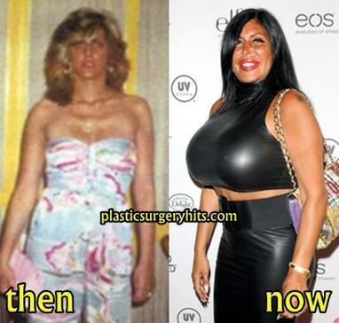 Big Ang Plastic Surgery Gone Wrong Before and After | Plastic surgery ...