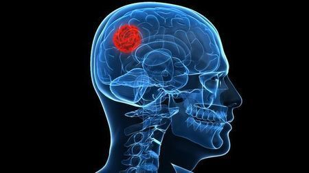 Scientists identify novel drug mechanism that fights brain cancer | Longevity science | Scoop.it
