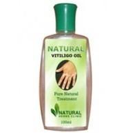 Natural vitiligo treatment with Natural vitiligo oil | Natural Herbs Clinic | Scoop.it