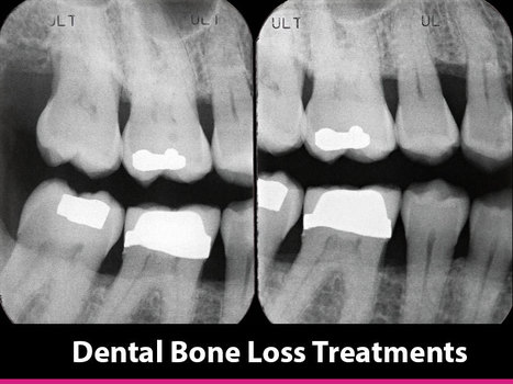 Dental Bone Loss Treatments | Webdentist | Dental health conditions, Treatments & remedies. | Scoop.it