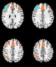 How Does ECT Work in the Brain? | Psychology and Brain News | Scoop.it