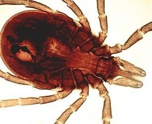 Lyme : même en ville, on peut être infecté par une tique | Toxique, soyons vigilant ! | Scoop.it