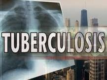 Now multi-drug-resistant TB stock crisis looms | eHEALTH Magazine | eHEALTH | Scoop.it