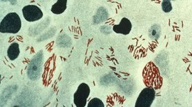 New species of leprosy bacteria found | Amazing Science | Scoop.it