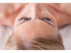 10 Things You Didn't Know About Acupuncture (but Probably Should) by Zita West | Fertility acupuncture | Scoop.it