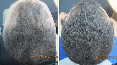 Case Study: Mature Hairline Solution at Ashley and Martin | Hair Regrowth | Scoop.it