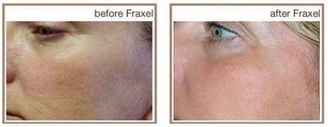 Best Treatment for Sun Damaged Skin   facialrejuvenation   Scoop.it