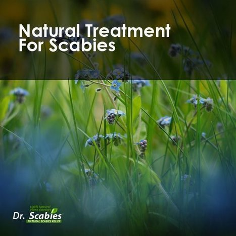 Natural Scabies Home Treatment | Best Scabies Treatment: Dr. Scabies - Home Treatment for Scabies, How to Treat Scabies | Health & Weight Loss | Scoop.it