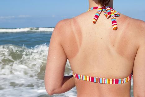 10 Home Remedies for Sunburn | WomenPulse | WomenPulse | Scoop.it