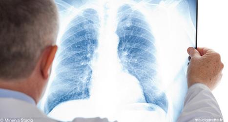 Asthme et cigarette électronique : Premiers éléments de réponse ... | cigarettes-electronique | Scoop.it
