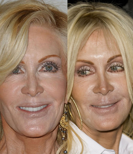 Joan Van Ark Plastic Surgery FAIL – Before And After | Celebrity Plastic Surgery | Scoop.it