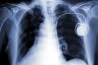 Un hacker a trouvé comment pirater à distance les pacemakers - France Info | Social Network & Digital Marketing | Scoop.it