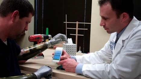 Amputee's bionic hands are controlled by iPhone app - kdvr.com | Mobile: Recruitment and Applications | Scoop.it