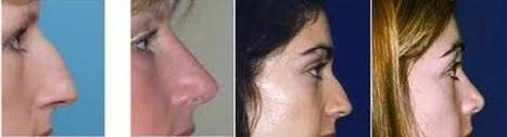 Rhinoplasty and Ear Cartilage Thailand - Urban Beauty Thailand | Facelift Thailand Find Thai Face Lift Best Surgeons in Bangkok, Phuket Thailand | Scoop.it