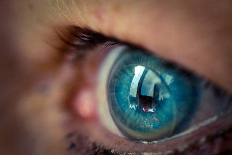 Russia: Contact Lenses - Market Report. Analysis a- Market Reports on Russia | Market Reports on Russia | Scoop.it