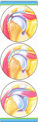 Cheap Rotator Cuff Repair in Mexico | Health and Medicine | Scoop.it