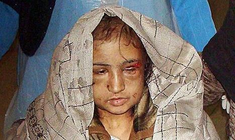 Afghan judges free three jailed for torture of child bride Sahar Gul | the intimate city | Scoop.it