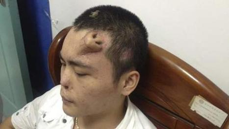 Victime d'un grave accident, il se retrouve avec un nouveau nez sur le front (vidéo) | Mais n'importe quoi ! | Scoop.it