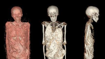 Así se ven las momias del Museo Arqueológico tras el escáner 3D | Egiptología | Scoop.it