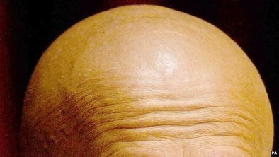 Baldness research 'creates a new hair follicle' | Stem Cells & Tissue Engineering | Scoop.it