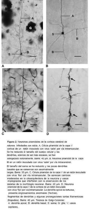 Biomédica - Neuronal dentritic morphology alterations in the cerebral cortex of rabies-infected mice: a Golgi study | Rabia (Lyssavirus) | Scoop.it