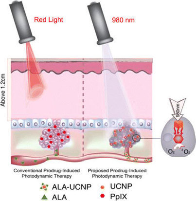 Nanoparticle-based photodynamic therapy to effectively kill deep-set cancer cells in vivo | Ancient & Current Pure & Applied Chemistry | Scoop.it