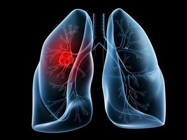 Medicine for Treating Bronchitis | general news | Scoop.it
