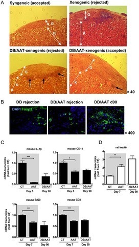 PLOS ONE: Pancreatic Islet Xenograft Survival in Mice Is Extended by a Combination of Alpha-1-Antitrypsin and Single-Dose Anti-CD4/CD8 Therapy | diabetes and more | Scoop.it