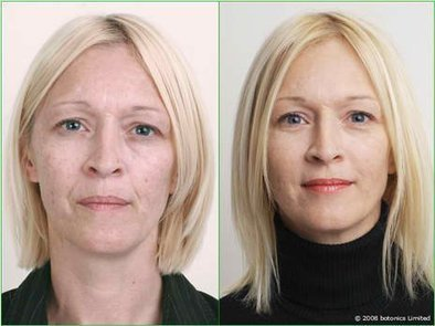 Anti-Wrinkle Creams - Do you want to Look Beautiful and Young? | Say good bye to the wrinkles. | Scoop.it