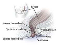 Hemorrhoids and what to do about them - Harvard Health Publications | Hemorrhoids | Scoop.it