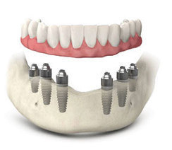 Cheapest dental implants in United Kingdom | Dental implant treatment | Scoop.it