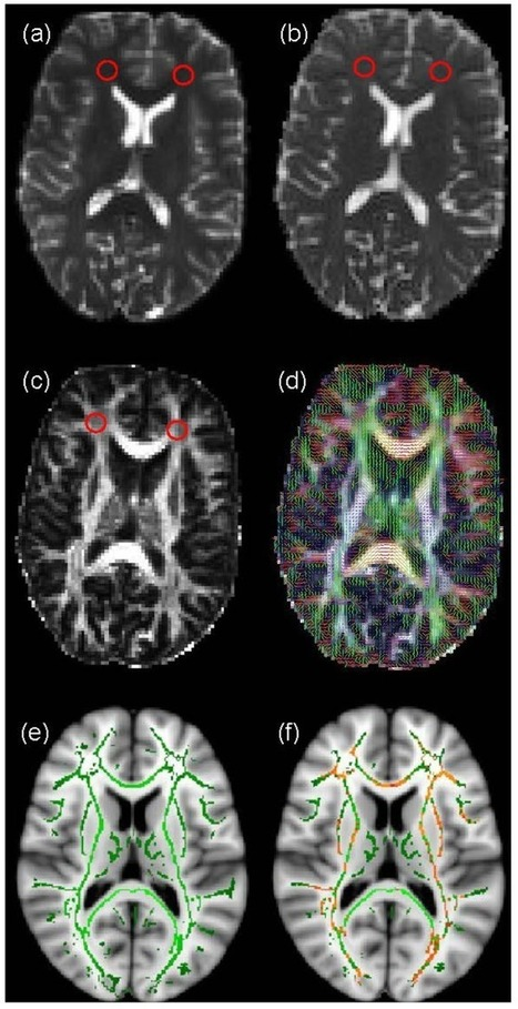 Can musical training influence brain connectivity? Evidence from diffusion tensor MRI | Bounded Rationality and Beyond | Scoop.it