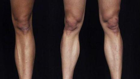 Dopage: le corps, un produit comme un autre | Sport et dopage | Scoop.it