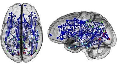 Male and female brains wired differently, scans reveal | Whole Brain Leadership | Scoop.it