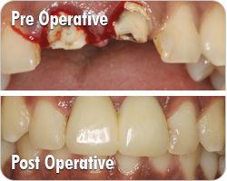 Sinus Graft Surgery Mumbai – ImplantmasterIndia | Health | Scoop.it