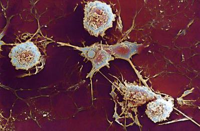 Un nouveau traitement de la sclérose en plaque   associations de patients : maladies chroniques ...ou pas   Scoop.it