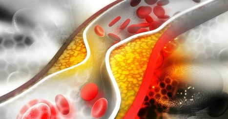 Vitamin K2 Improves Artery Health | Longevity science | Scoop.it