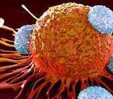 Lymphome et cancer – Un traitement naturel pour une guérison, avec ou sans chimio | La santé au naturel | Scoop.it