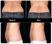 CoolSculpting Zeltiq Non-Surgical body sculpting in Toronto | Plastic Surgery | Scoop.it