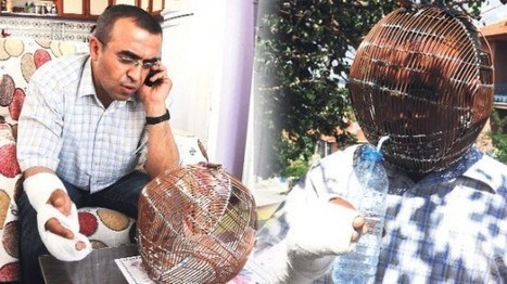 Turkish Man Wears Copper Wire Cage on His Head to Quit Smoking | Strange days indeed... | Scoop.it