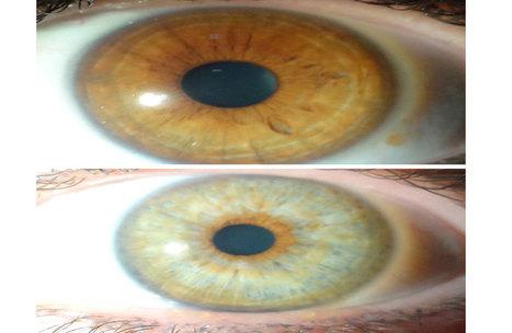 Un tratamiento con láser modificar el color del iris - Vanguardia.com.mx   Oftalmologia en Barcelona Dr. Cabot   Scoop.it