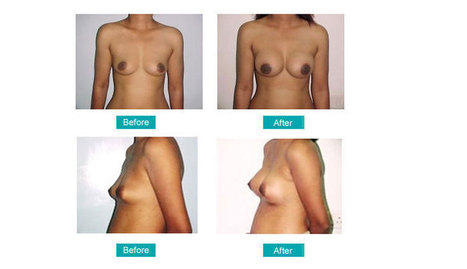 Breast Surgery in Mumbai, India   My Collections   Scoop.it